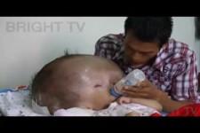 Baby mit Wasserkopf