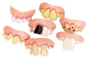 Gefälschte Zähne!