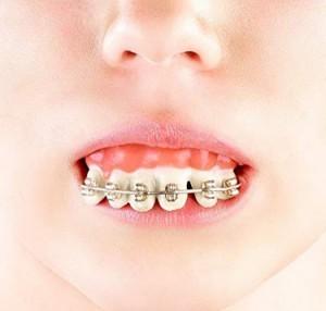 Falsche Zähne mit Zahnspange!